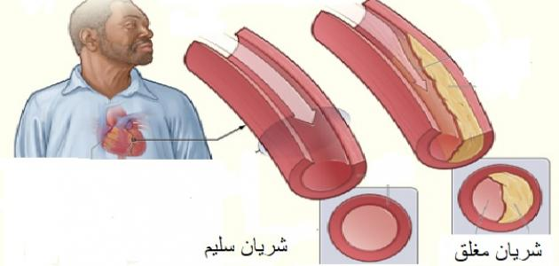صورة ما هي أمراض القلب