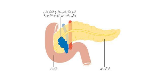 صورة أورام البنكرياس وأعراضه
