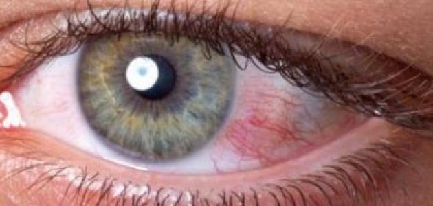 صورة كيفية قياس ضغط العين