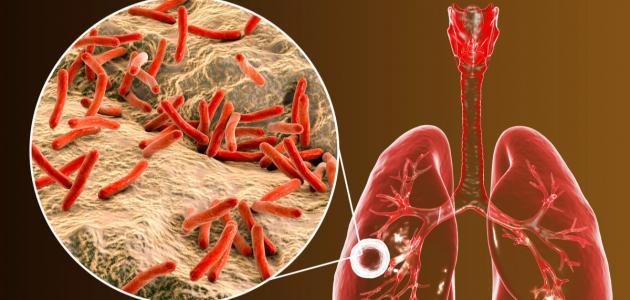 صورة أسباب مرض السل