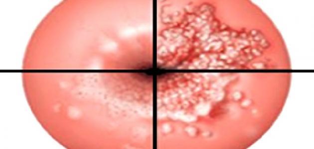 صورة ما هي أعراض قرحة الرحم