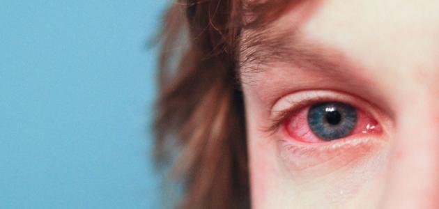 صورة تأثير ارتفاع الضغط على العين