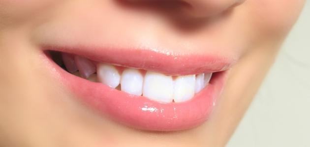 صورة كيفية تبييض الأسنان بسرعة
