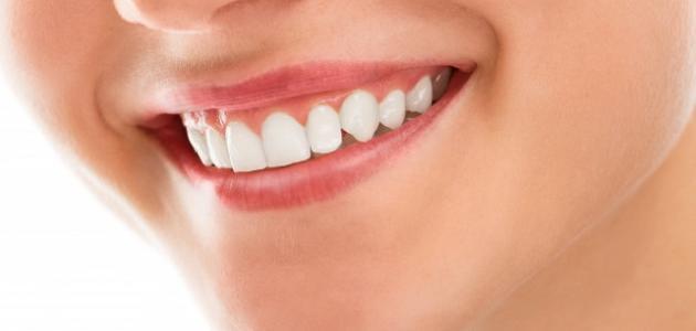 صورة كيفية الحصول على أسنان بيضاء