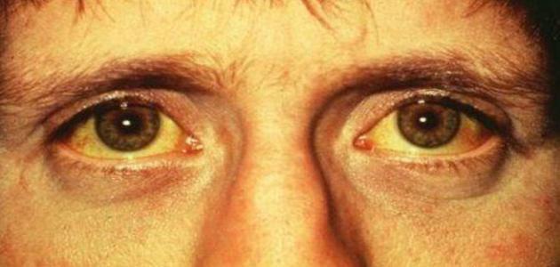صورة جديد ما سبب اصفرار الوجه