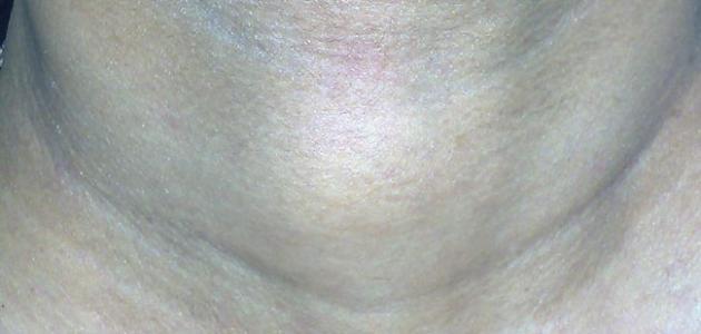 صورة جديد أعراض سرطان الغدة الدرقية