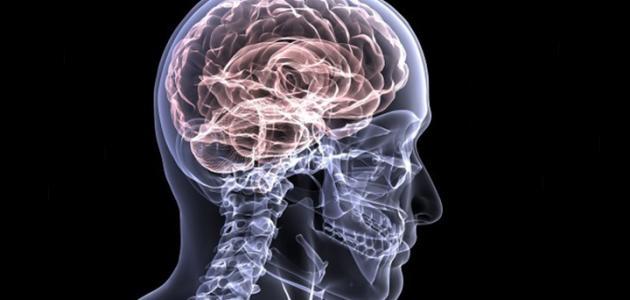 صورة جديد أعراض سكتة دماغية