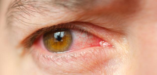 صورة جديد التهاب بياض العين