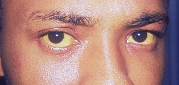 صورة جديد أعراض مرض التهاب الكبد الوبائي