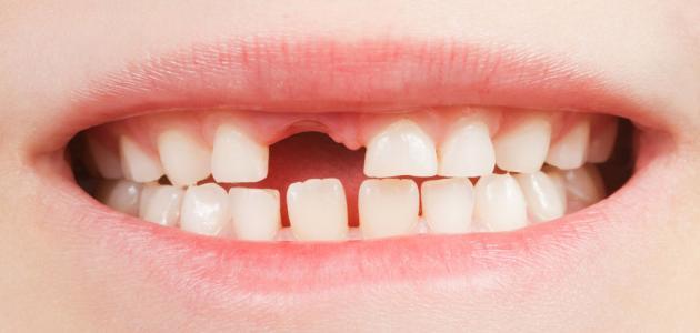 صورة جديد كم عدد الأسنان المؤقتة عند الطفل