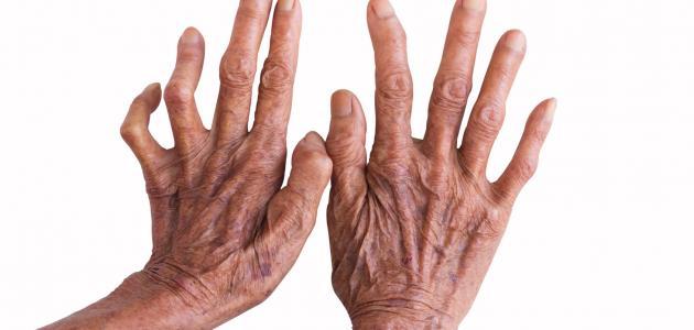 صورة جديد علاج مرض الجذام