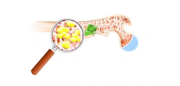 صورة جديد التهاب نقي العظم