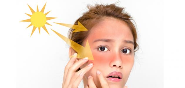 صورة جديد كيفية علاج حروق الشمس