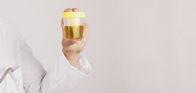 صورة جديد كيف أعرف تسمم الحمل