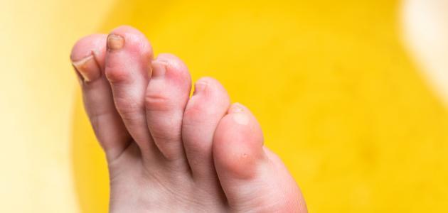 صورة جديد تنميل أصابع القدم