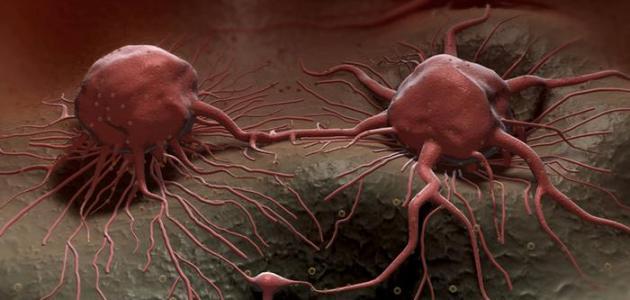 صورة جديد طرق علاج السرطان
