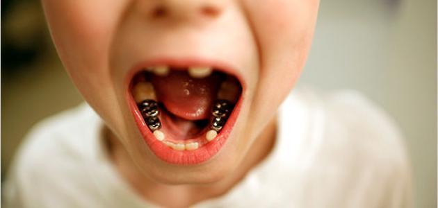 صورة جديد تآكل الأسنان – فيديو