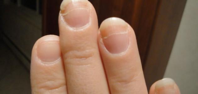 صورة جديد علاج ضعف الأظافر