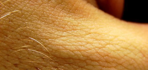 صورة جديد التهاب جريبات الشعر
