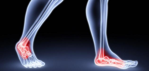 صورة جديد أعراض التهاب الوريد الخثري