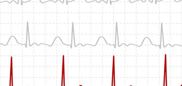 صورة جديد طريقة قراءة تخطيط القلب