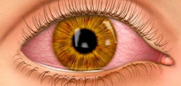 صورة جديد حول العين المفاجئ