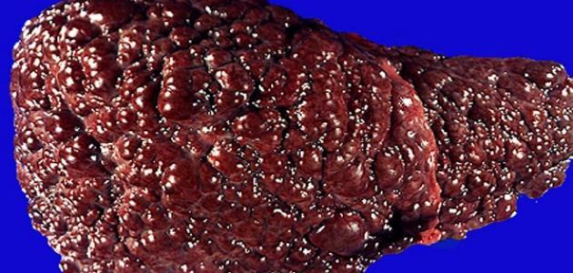 صورة جديد درجات تليف الكبد