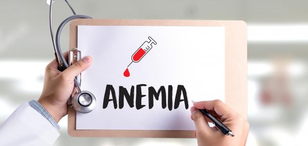 صورة جديد بحث عن فقر الدم