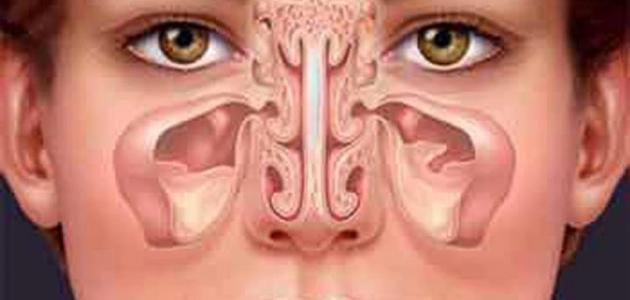 صورة جديد التهاب الجيوب الأنفية