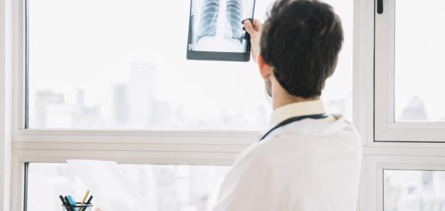صورة جديد أعراض سرطان الرئة الحميد