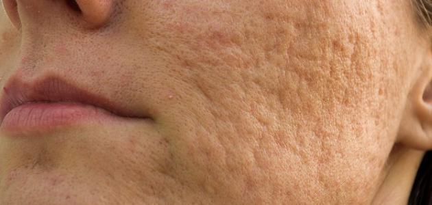 صورة جديد علاج آثار الحبوب في الوجه