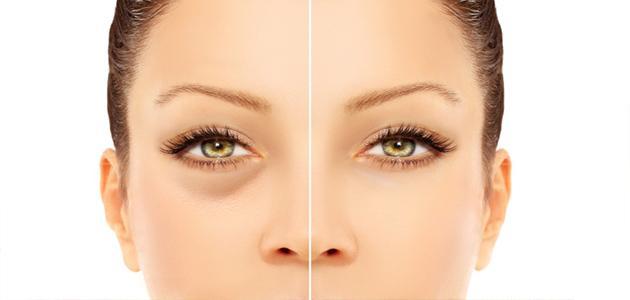 صورة جديد علاج انتفاخ تحت العين