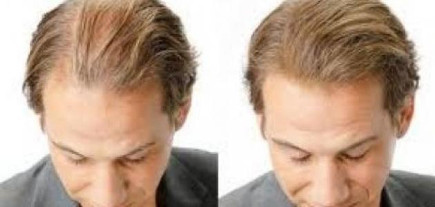 صورة جديد حلول لعلاج تساقط الشعر