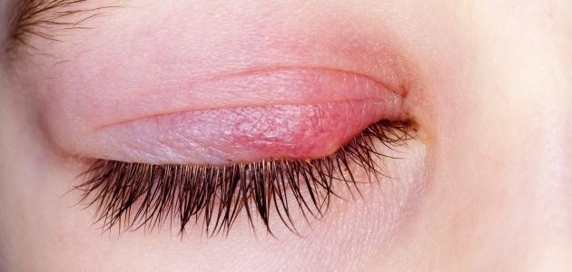 صورة جديد كيفية علاج تورم العين