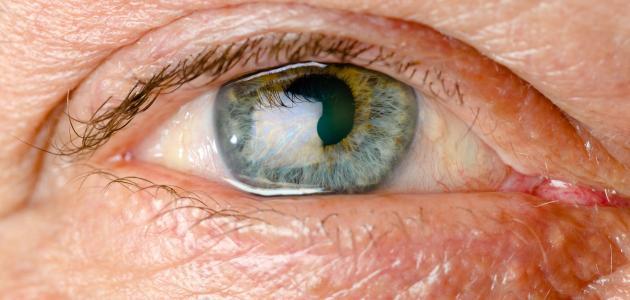صورة جديد أعراض مرض ويلسون