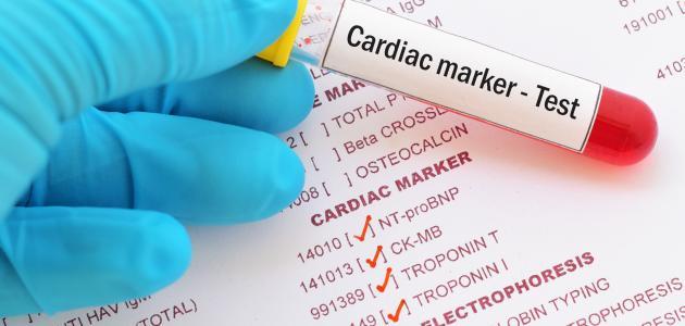 صورة جديد ما هو تحليل إنزيمات القلب