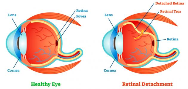 صورة جديد ما هي أمراض شبكية العين