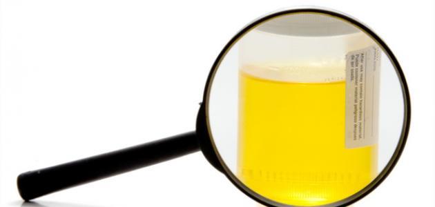 صورة جديد ما هي أعراض التهاب البول