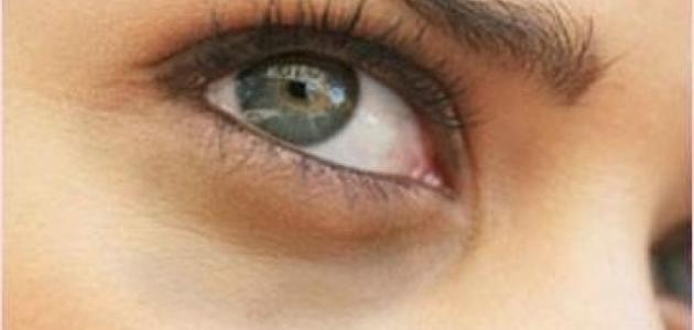 صورة جديد طرق لإزالة السواد تحت العينين