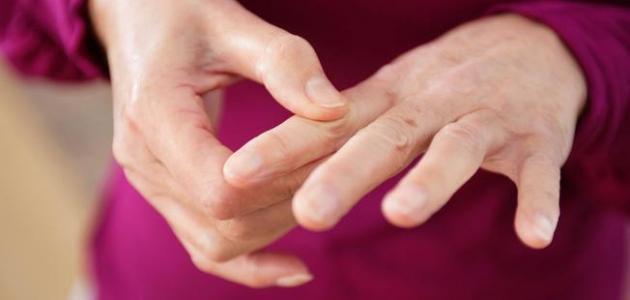 صورة جديد علاج الروماتيزم