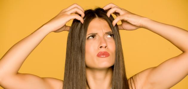 صورة جديد طرق التخلص من قشرة الشعر بسرعة