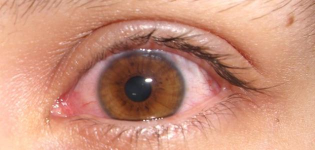 صورة جديد لماذا تحمر العين
