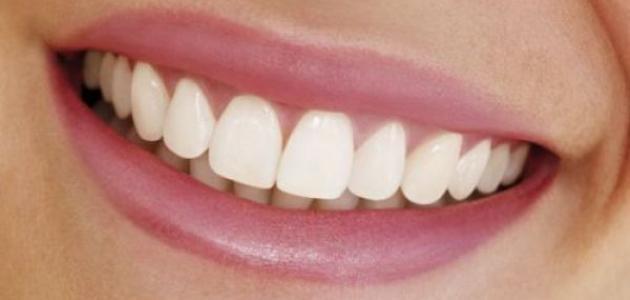 صورة جديد ما هو خراج الأسنان – فيديو