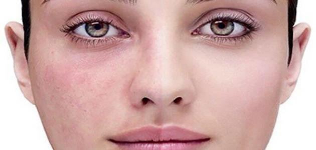 صورة جديد ما هي أسباب مرض الوردية