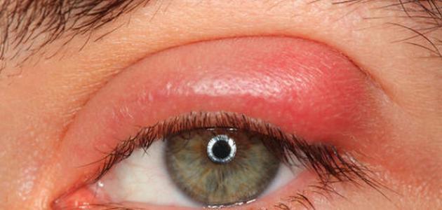 صورة جديد علاج انتفاخ جفن العين العلوي