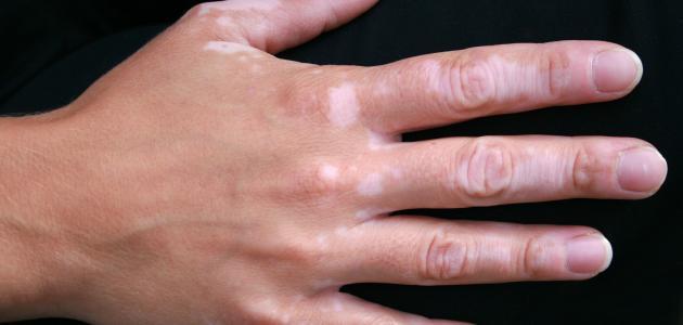 صورة جديد علاج البهاق بالأدوية والأشعة