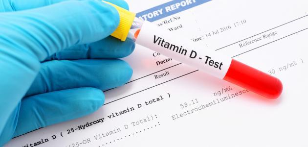 صورة جديد كم النسبة الطبيعية لفيتامين د في الجسم