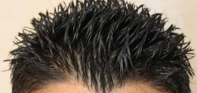 صورة جديد كيفية زيادة نمو شعر الرأس بسرعة