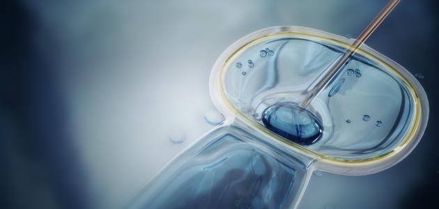 صورة جديد عملية الحقن المجهري