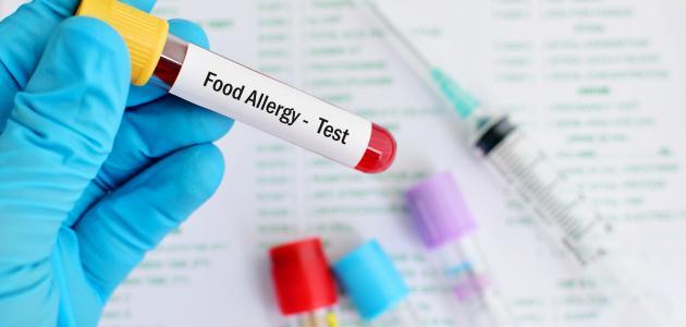 صورة جديد ما هو تحليل حساسية الطعام